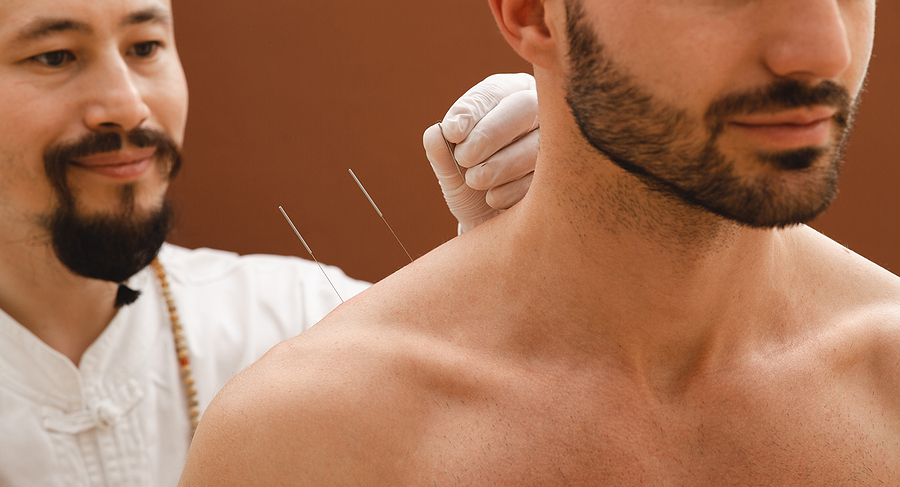 Man getting an acupuncture for shoulder pain treatment